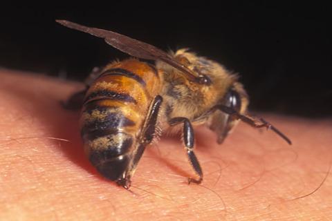 Ubod ose ili pčele