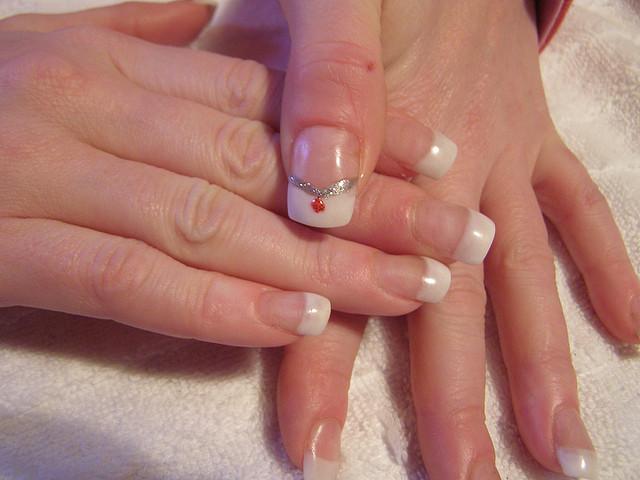 Listanje noktiju na rukama i nogama - simptomi i lečcenje