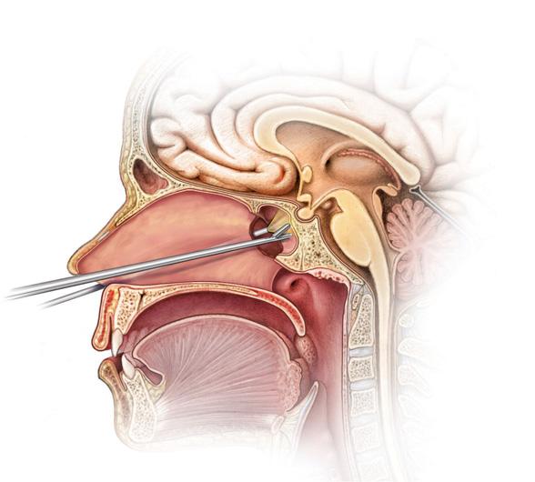 Hipofiza zlezda - gde se nalazi, koja je njena uloga i prirodno lecenje