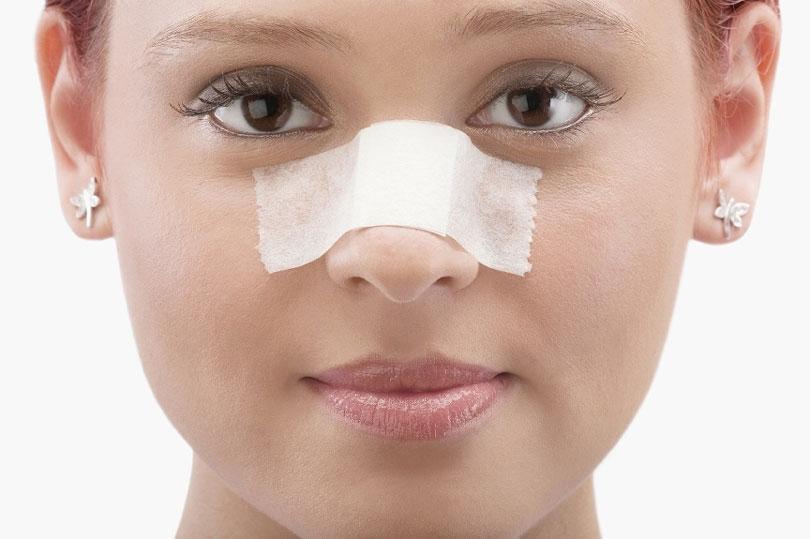 Operacija i korekcija nosa - postupak, oporavak, komplikacije