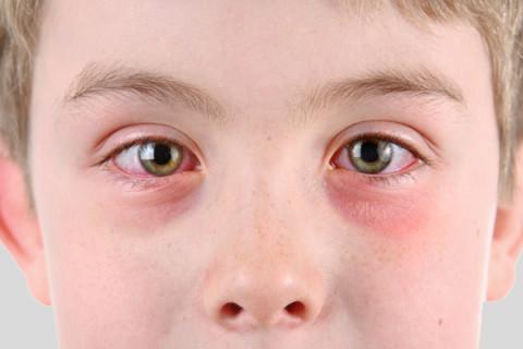 Konjuktivitis oka - simptomi i prirodno lečenje