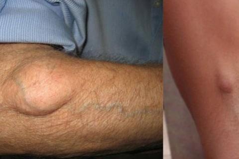 Masno tkivo - uzrok, simptomi i lečenje